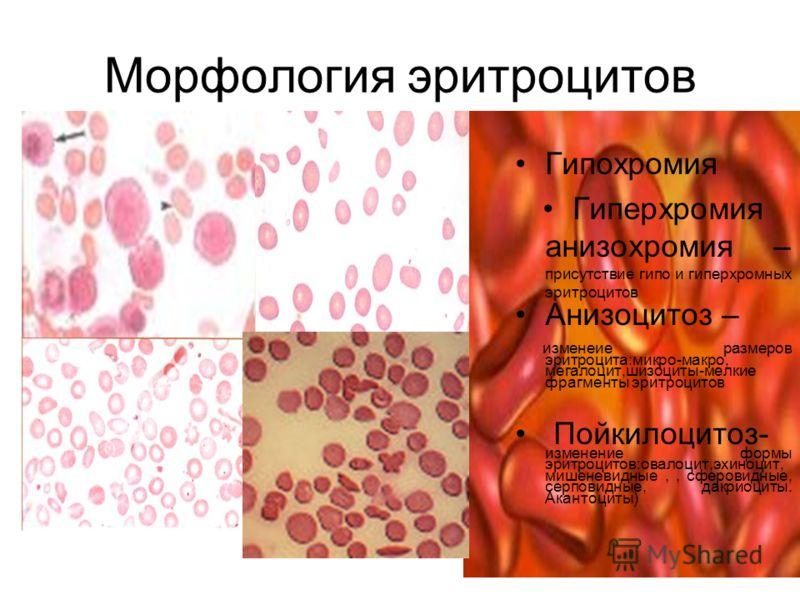 Полихроматофилия