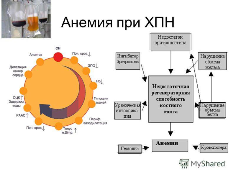 Анемия при ХПН
