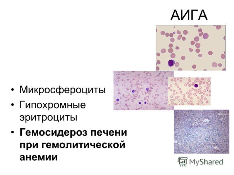 АИГА Микросфероциты Гипохромные эритроциты Гемосидероз печени при гемолитической анемии