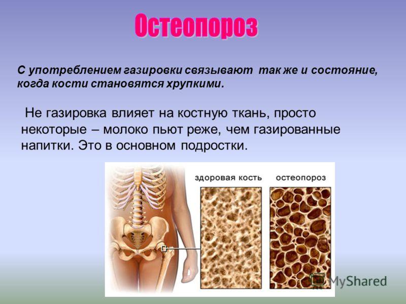 Не газировка влияет на костную ткань, просто некоторые – молоко пьют реже, чем газированные напитки. Это в основном подростки. С употреблением газировки связывают так же и состояние, когда кости становятся хрупкими.