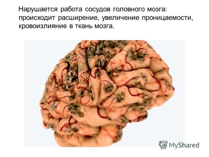 Нарушается работа сосудов головного мозга: происходит расширение, увеличение проницаемости, кровоизлияние в ткань мозга.