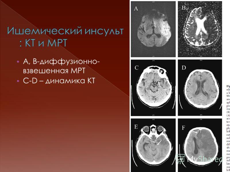 А, B-диффузионно- взвешенная МРТ C-D – динамика КТ