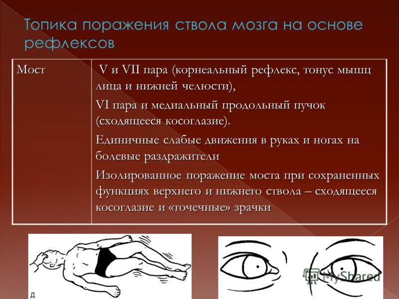 Мост V и VII пара (корнеальный рефлекс, тонус мышц лица и нижней челюсти), V и VII пара (корнеальный рефлекс, тонус мышц лица и нижней челюсти), VI пара и медиальный продольный пучок (сходящееся косоглазие). Единичные слабые движения в руках и ногах