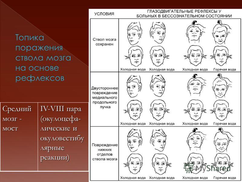 Средний мозг - мост IV-VIII пара (окулоцефа- лические и окуловестибу лярные реакции)