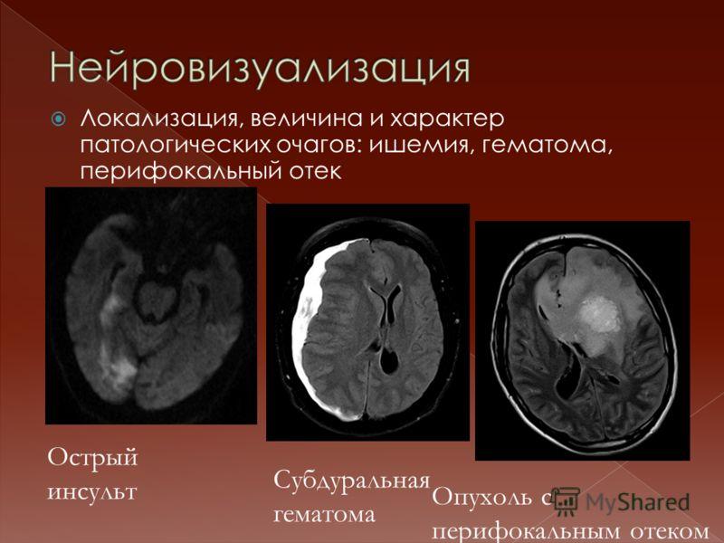 Локализация, величина и характер патологических очагов: ишемия, гематома, перифокальный отек Острый инсульт Субдуральная гематома Опухоль с перифокальным отеком