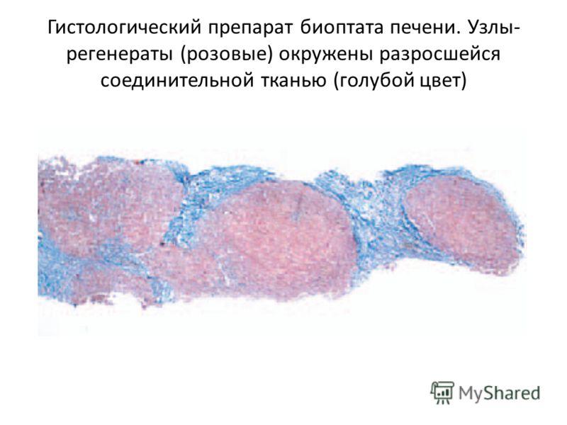 Гистологический препарат биоптата печени. Узлы- регенераты (розовые) окружены разросшейся соединительной тканью (голубой цвет)