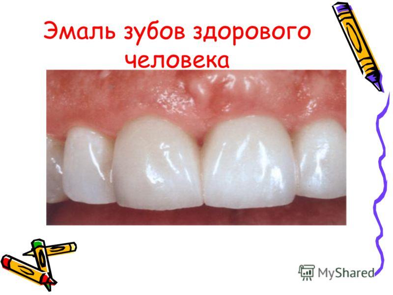 Эмаль зубов здорового человека
