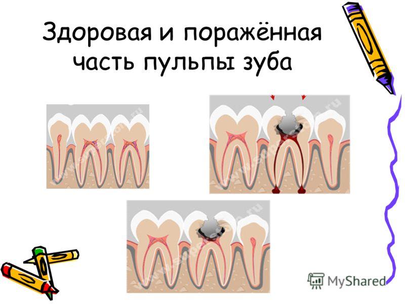 Здоровая и поражённая часть пульпы зуба