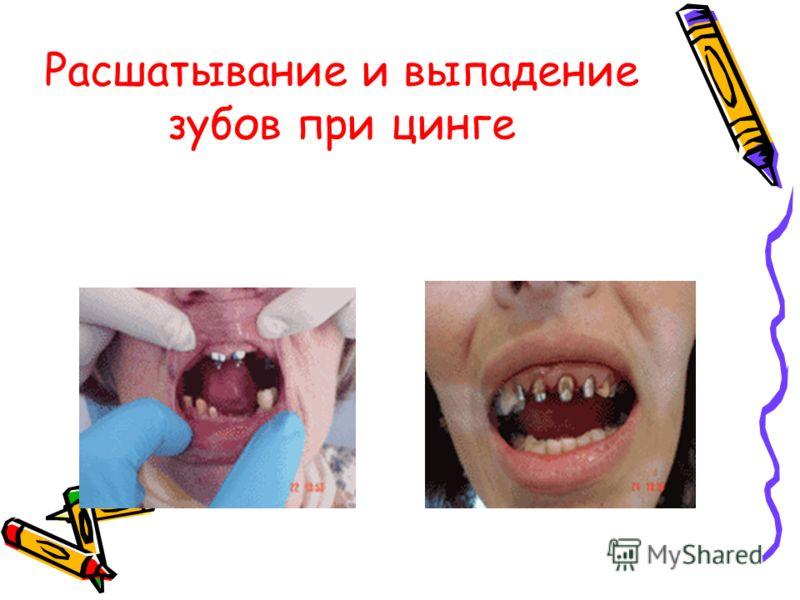 Расшатывание и выпадение зубов при цинге