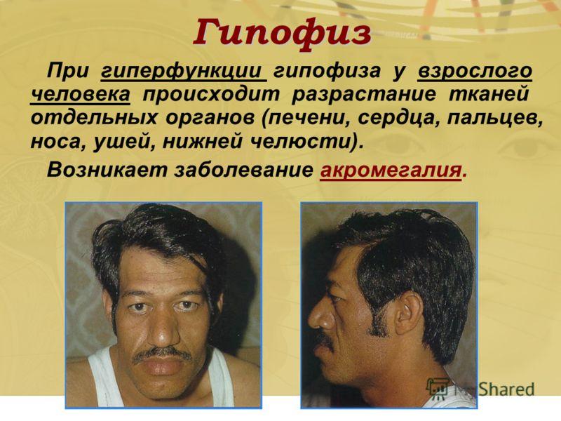 Гипофиз При гиперфункции гипофиза у взрослого человека происходит разрастание тканей отдельных органов (печени, сердца, пальцев, носа, ушей, нижней челюсти). Возникает заболевание акромегалия.