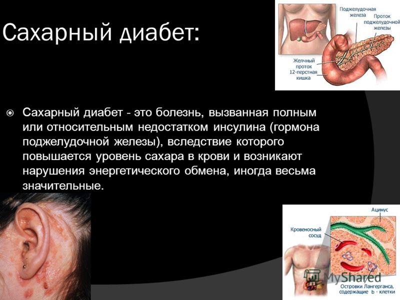Сахарный диабет: Сахарный диабет - это болезнь, вызванная полным или относительным недостатком инсулина (гормона поджелудочной железы), вследствие которого повышается уровень сахара в крови и возникают нарушения энергетического обмена, иногда весьма
