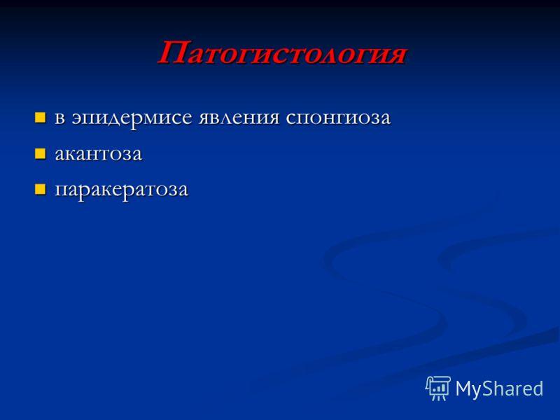 Патогистология в эпидермисе явления спонгиоза в эпидермисе явления спонгиоза акантоза акантоза паракератоза паракератоза