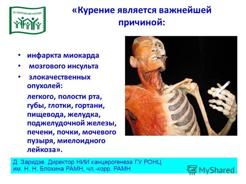 «Курение является важнейшей причиной: инфаркта миокарда мозгового инсульта злокачественных опухолей: легкого, полости рта, губы, глотки, гортани, пищевода, желудка, поджелудочной железы, печени, почки, мочевого пузыря, миелоидного лейкоза». Д. Заридз