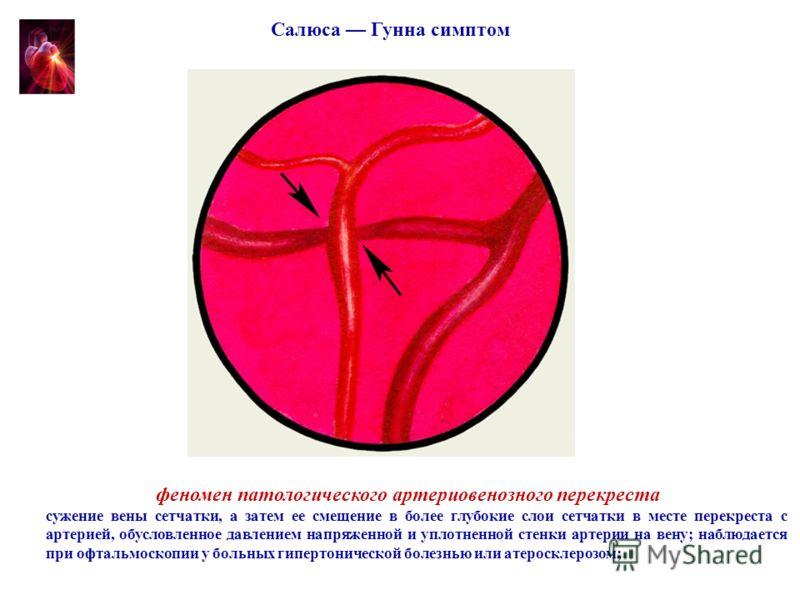феномен патологического артериовенозного перекреста сужение вены сетчатки, а затем ее смещение в более глубокие слои сетчатки в месте перекреста с артерией, обусловленное давлением напряженной и уплотненной стенки артерии на вену; наблюдается при офт