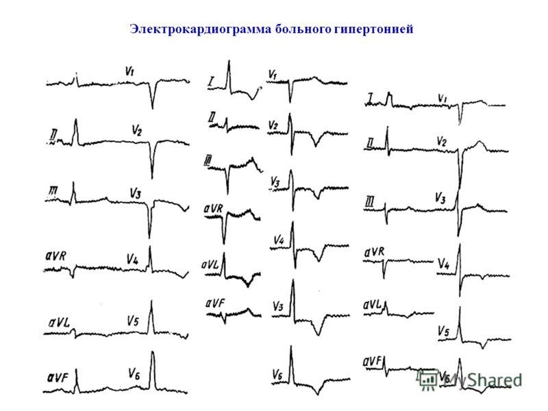Электрокардиограмма больного гипертонией