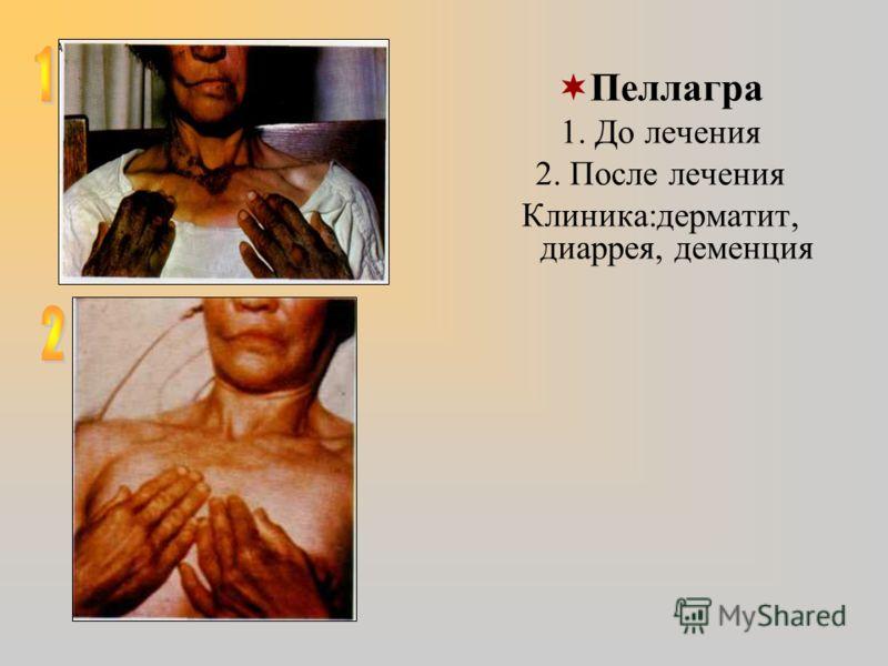 Пеллагра 1. До лечения 2. После лечения Клиника:дерматит, диаррея, деменция