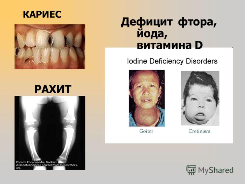 КАРИЕС РАХИТ Дефицит фтора, йода, витамина D