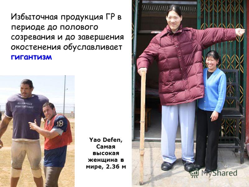 Избыточная продукция ГР в периоде до полового созревания и до завершения окостенения обуславливает гигантизм Yao Defen, Самая высокая женщина в мире, 2.36 м