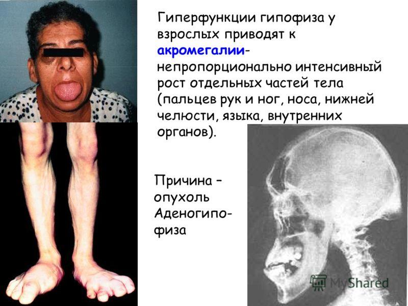 Гиперфункции гипофиза у взрослых приводят к акромегалии- непропорционально интенсивный рост отдельных частей тела (пальцев рук и ног, носа, нижней челюсти, языка, внутренних органов). Причина – опухоль Аденогипо- физа