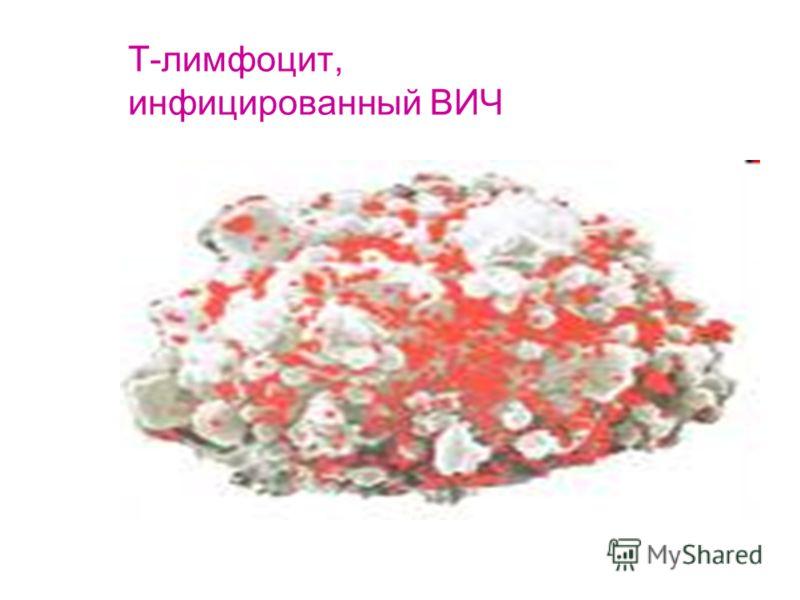 Т-лимфоцит, инфицированный ВИЧ