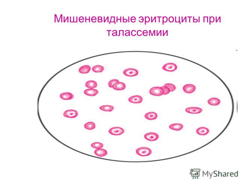 Мишеневидные эритроциты при талассемии