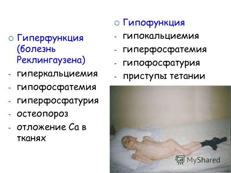 Гиперфункция (болезнь Реклингаузена) - гиперкальциемия - гипофосфатемия - гиперфосфатурия - остеопороз - отложение Са в тканях Гипофункция - гипокальциемия - гиперфосфатемия - гипофосфатурия - приступы тетании