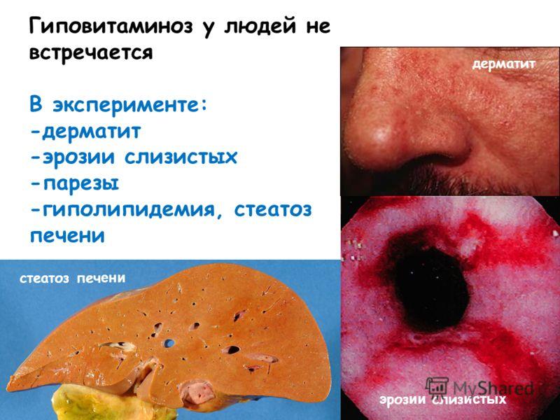 Гиповитаминоз у людей не встречается В эксперименте: -дерматит -эрозии слизистых -парезы -гиполипидемия, стеатоз печени дерматит э роз ии слиз истых стеатоз печ ени