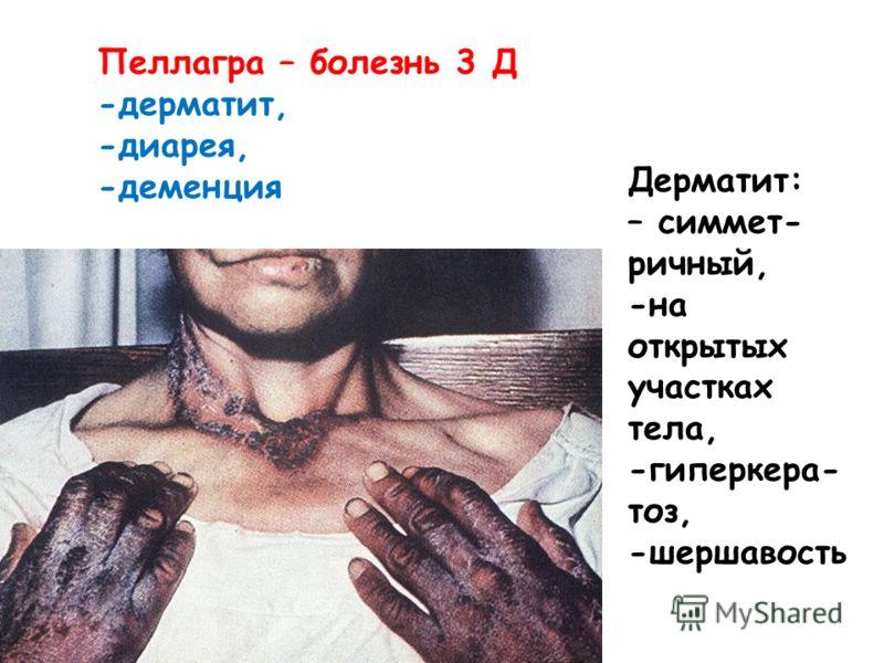 Пеллагра – болезнь 3 Д -дерматит, -диарея, -деменция Дерматит: – симмет- ричный, -на открытых участках тела, -гиперкера- тоз, -шершавость