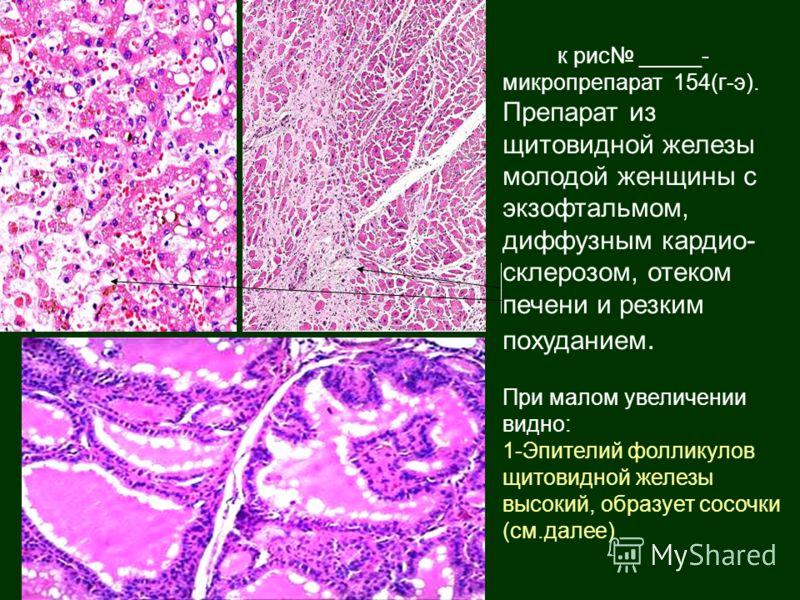 к рис _____- микропрепарат 154(г-э). Препарат из щитовидной железы молодой женщины с экзофтальмом, диффузным кардио- склерозом, отеком печени и резким похуданием. При малом увеличении видно: 1-Эпителий фолликулов щитовидной железы высокий, образует с