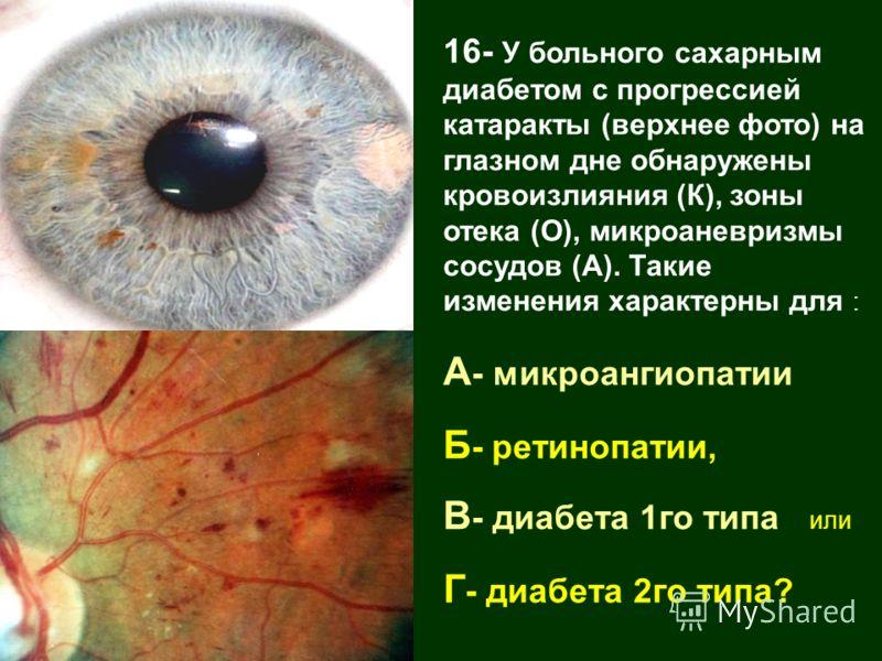 16- У больного сахарным диабетом с прогрессией катаракты (верхнее фото) на глазном дне обнаружены кровоизлияния (К), зоны отека (О), микроаневризмы сосудов (А). Такие изменения характерны для : А - микроангиопатии Б - ретинопатии, В - диабета 1го тип
