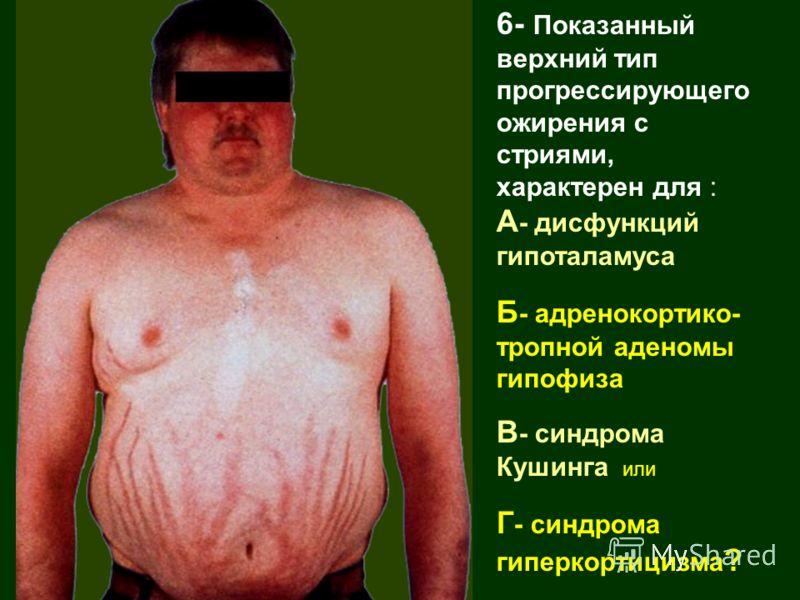 6- Показанный верхний тип прогрессирующего ожирения с стриями, характерен для : А - дисфункций гипоталамуса Б - адренокортико- тропной аденомы гипофиза В - синдрома Кушинга или Г - синдрома гиперкортицизма ?