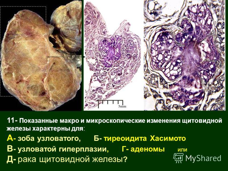 11- Показанные макро и микроскопические изменения щитовидной железы характерны для: А - зоба узловатого, Б- тиреоидита Хасимото В - узловатой гиперплазии, Г- аденомы или Д- рака щитовидной железы ?