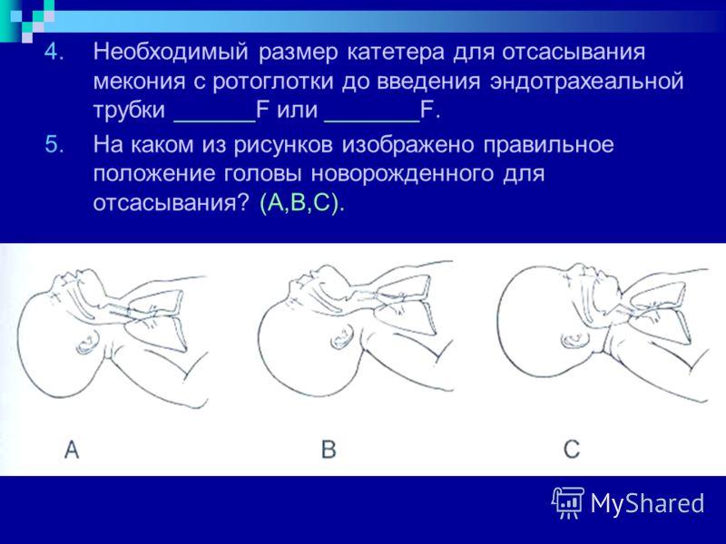 4.Необходимый размер катетера для отсасывания мекония с ротоглотки до введения эндотрахеальной трубки ______F или _______F. 5.На каком из рисунков изображено правильное положение головы новорожденного для отсасывания? (А,В,С).