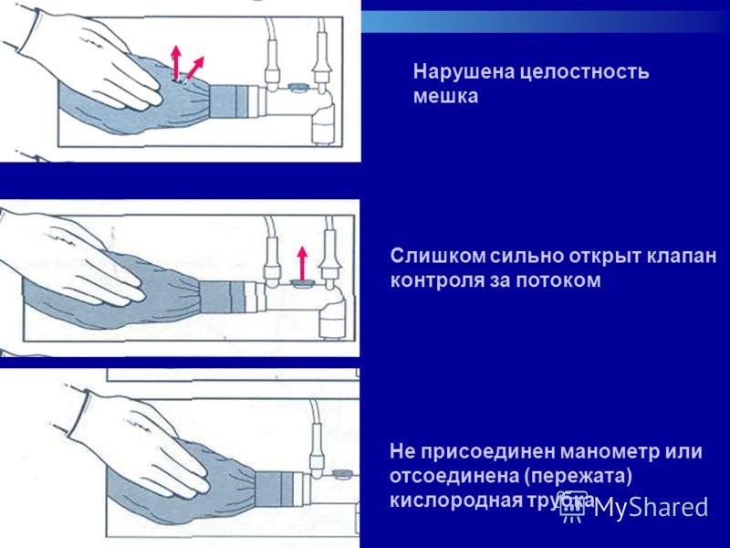 Нарушена целостность мешка Слишком сильно открыт клапан контроля за потоком Не присоединен манометр или отсоединена (пережата) кислородная трубка