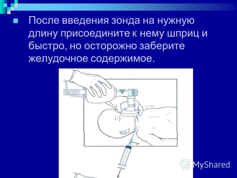 После введения зонда на нужную длину присоедините к нему шприц и быстро, но осторожно заберите желудочное содержимое.