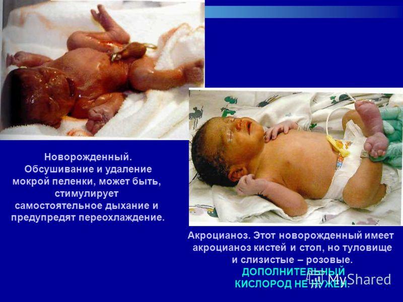Новорожденный. Обсушивание и удаление мокрой пеленки, может быть, стимулирует самостоятельное дыхание и предупредят переохлаждение. Акроцианоз. Этот новорожденный имеет акроцианоз кистей и стоп, но туловище и слизистые – розовые. ДОПОЛНИТЕЛЬНЫЙ КИСЛО