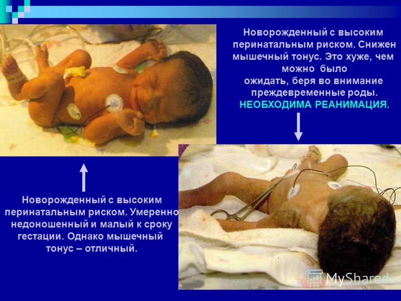Новорожденный с высоким перинатальным риском. Умеренно недоношенный и малый к сроку гестации. Однако мышечный тонус – отличный. Новорожденный с высоким перинатальным риском. Снижен мышечный тонус. Это хуже, чем можно было ожидать, беря во внимание пр