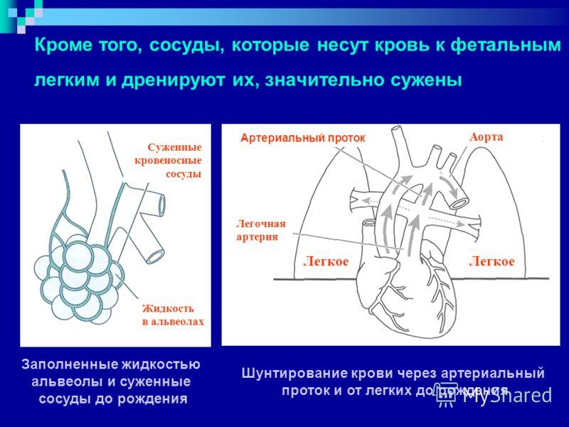 Кроме того, сосуды, которые несут кровь к фетальным легким и дренируют их, значительно сужены Суженные кровеносные сосуды Жидкость в альвеолах Артериальный проток Легочная артерия Аорта Легкое Заполненные жидкостью альвеолы и суженные сосуды до рожде