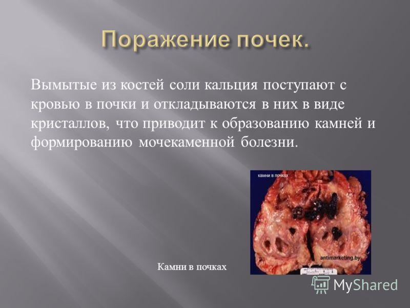 Вымытые из костей соли кальция поступают с кровью в почки и откладываются в них в виде кристаллов, что приводит к образованию камней и формированию мочекаменной болезни. Камни в почках