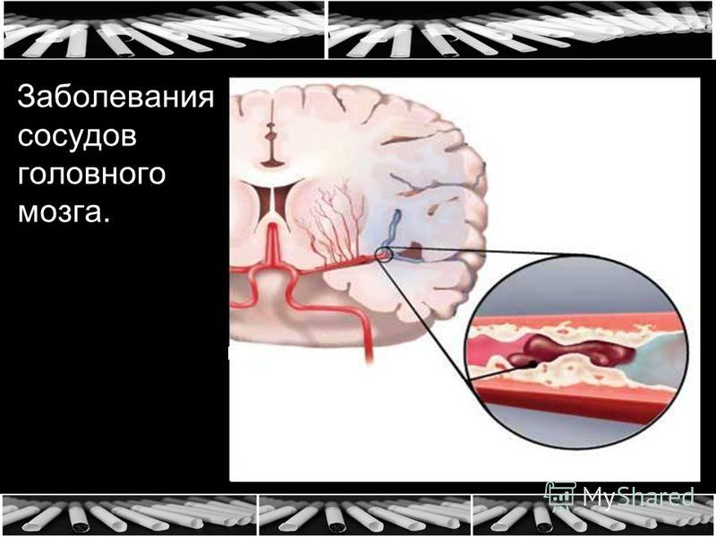 Заболевания сосудов головного мозга.
