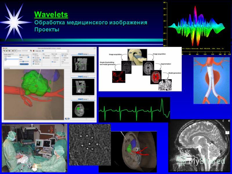 Wavelets Обработка медицинского изображения Проекты