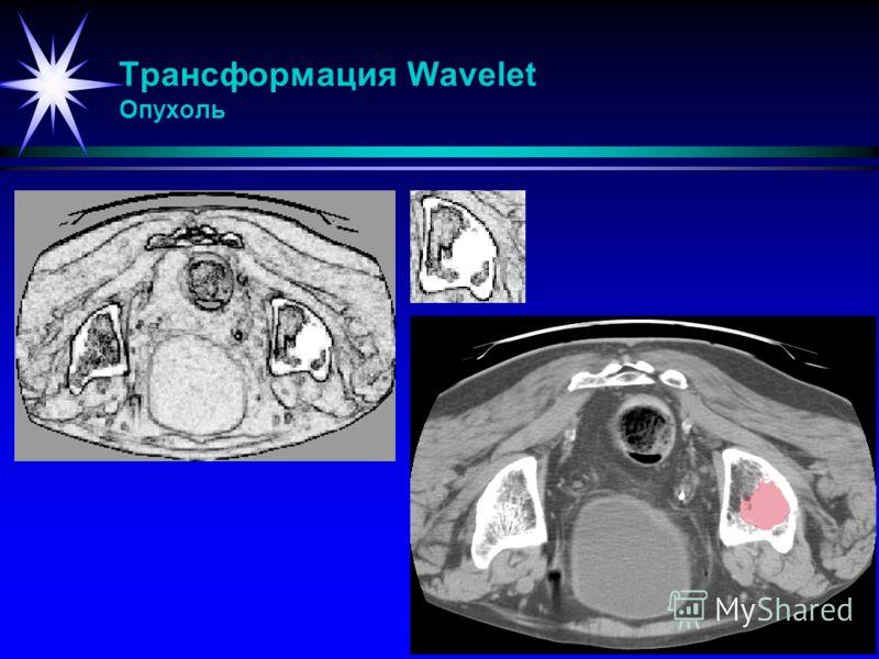 Трансформация Wavelet Опухоль