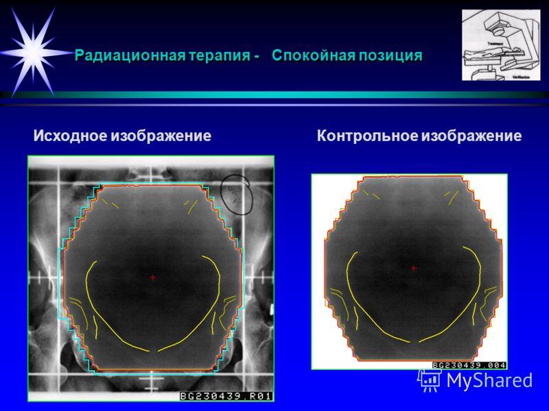Радиационная терапия - Спокойная позиция Исходное изображениеКонтрольное изображение