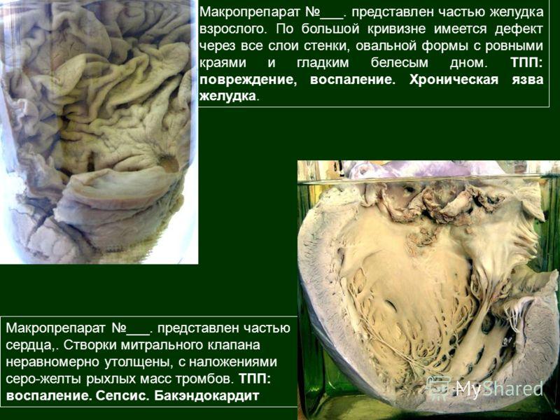 Макропрепарат ___. представлен частью сердца,. Створки митрального клапана неравномерно утолщены, с наложениями серо-желты рыхлых масс тромбов. ТПП: воспаление. Сепсис. Бакэндокардит Макропрепарат ___. представлен частью желудка взрослого. По большой