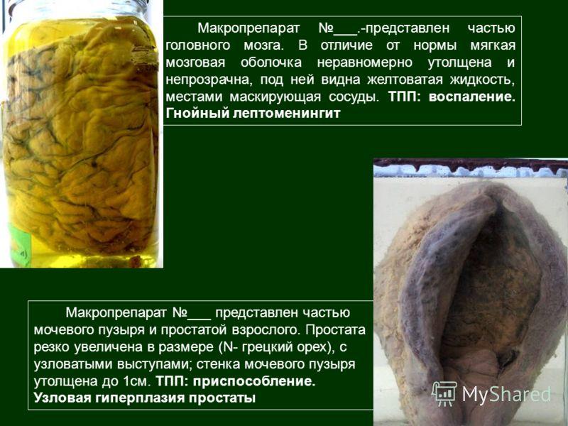 Макропрепарат ___ представлен частью мочевого пузыря и простатой взрослого. Простата резко увеличена в размере (N- грецкий орех), с узловатыми выступами; стенка мочевого пузыря утолщена до 1см. ТПП: приспособление. Узловая гиперплазия простаты Макроп