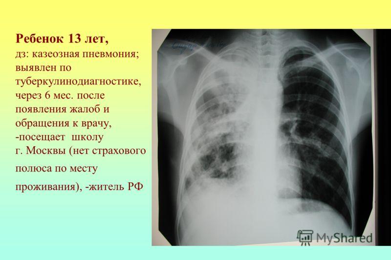 Ребенок 13 лет, дз: казеозная пневмония; выявлен по туберкулинодиагностике, через 6 мес. после появления жалоб и обращения к врачу, -посещает школу г. Москвы (нет страхового полюса по месту проживания), -житель РФ