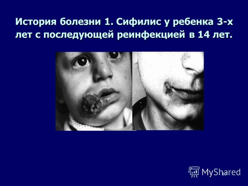 16 Клинические особенности сифилиса у детей, выявленные в Нижнем Новгороде, 1990- 2001 гг. n Множественные генитальные эрозивные шанкры, часто осложненные вторичной инфекцией n Поражение полости рта n Множественные папулезные высыпания, склонные к сл