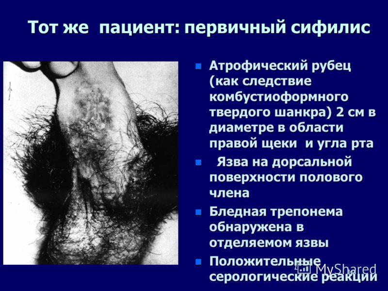 18 История болезни: n Нашими коллегами проф.Т.А.Главинской и С.И Новиковой был описан необычный случай бытового заражения сифилисом 3-летнего мальчика с последующей реинфекцией через 11 лет. n Эпидемиологическое расследование показало, что ребенок 3