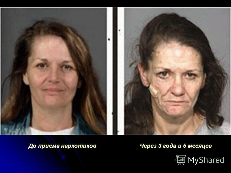 До приема наркотиковЧерез 3 года и 5 месяцев