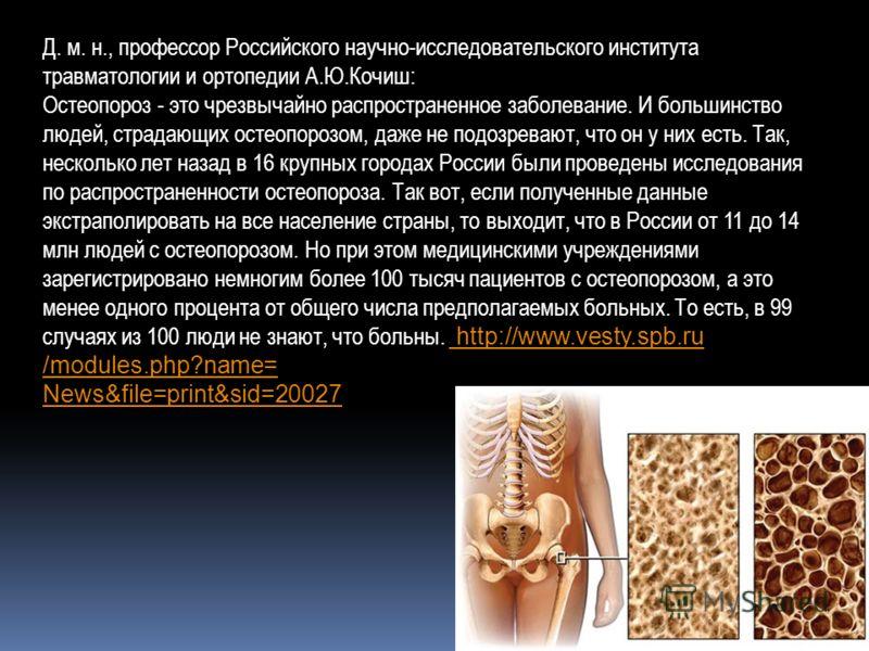 Д. м. н., профессор Российского научно-исследовательского института травматологии и ортопедии А.Ю.Кочиш: Остеопороз - это чрезвычайно распространенное заболевание. И большинство людей, страдающих остеопорозом, даже не подозревают, что он у них есть.